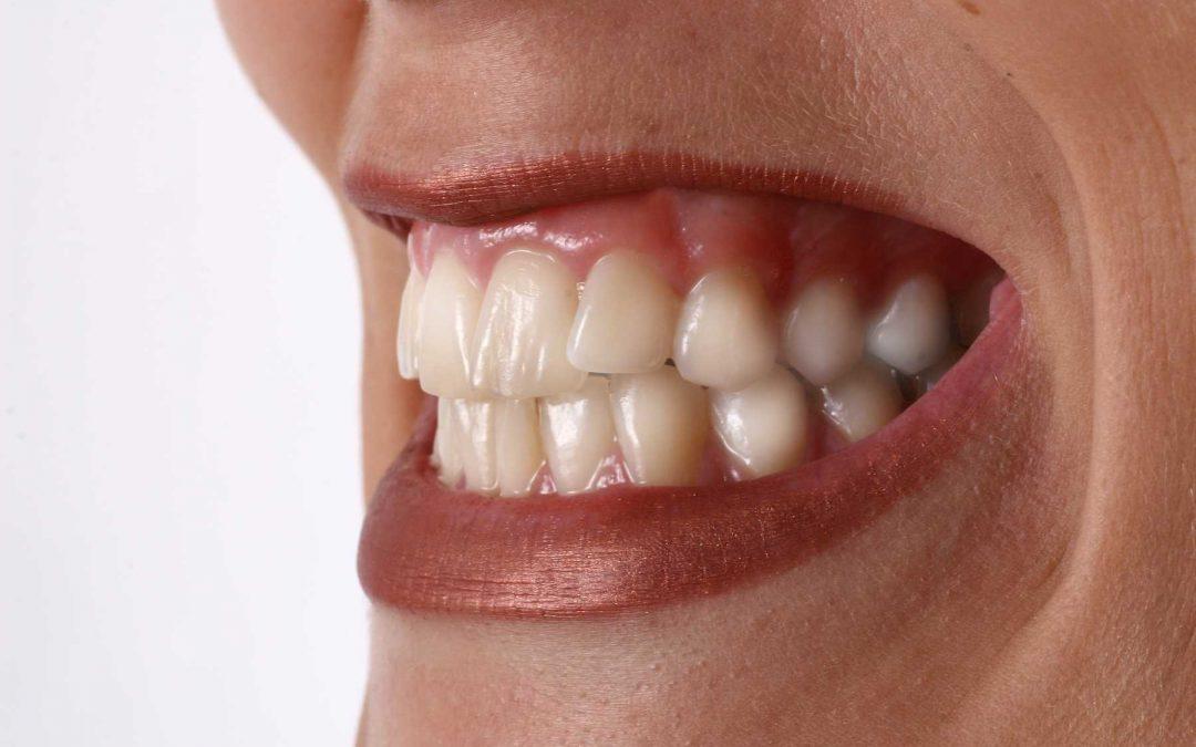 Warum ist es so schwierig vom Zähneknirschen loszukommen?