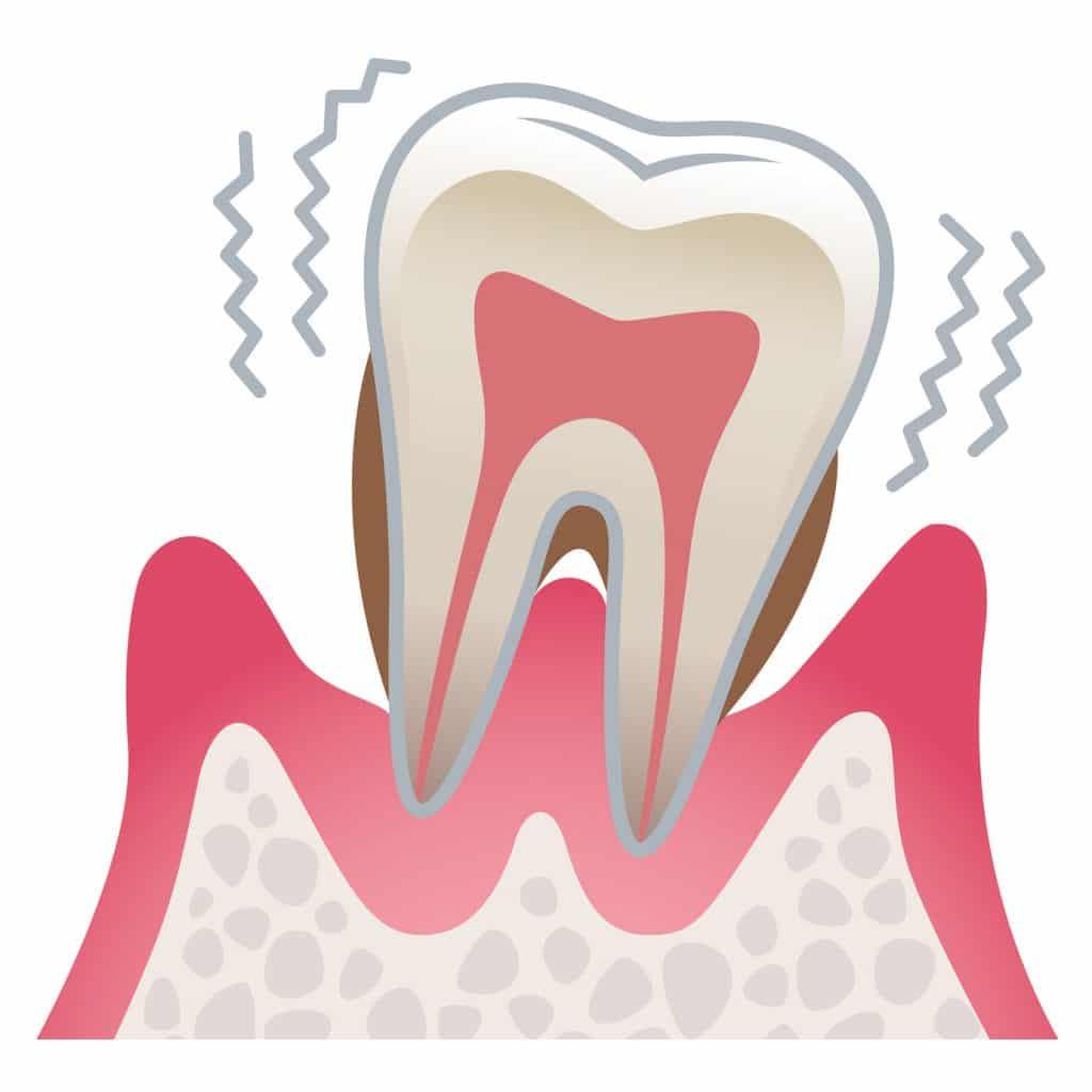 Zahn im Zahnfleisch