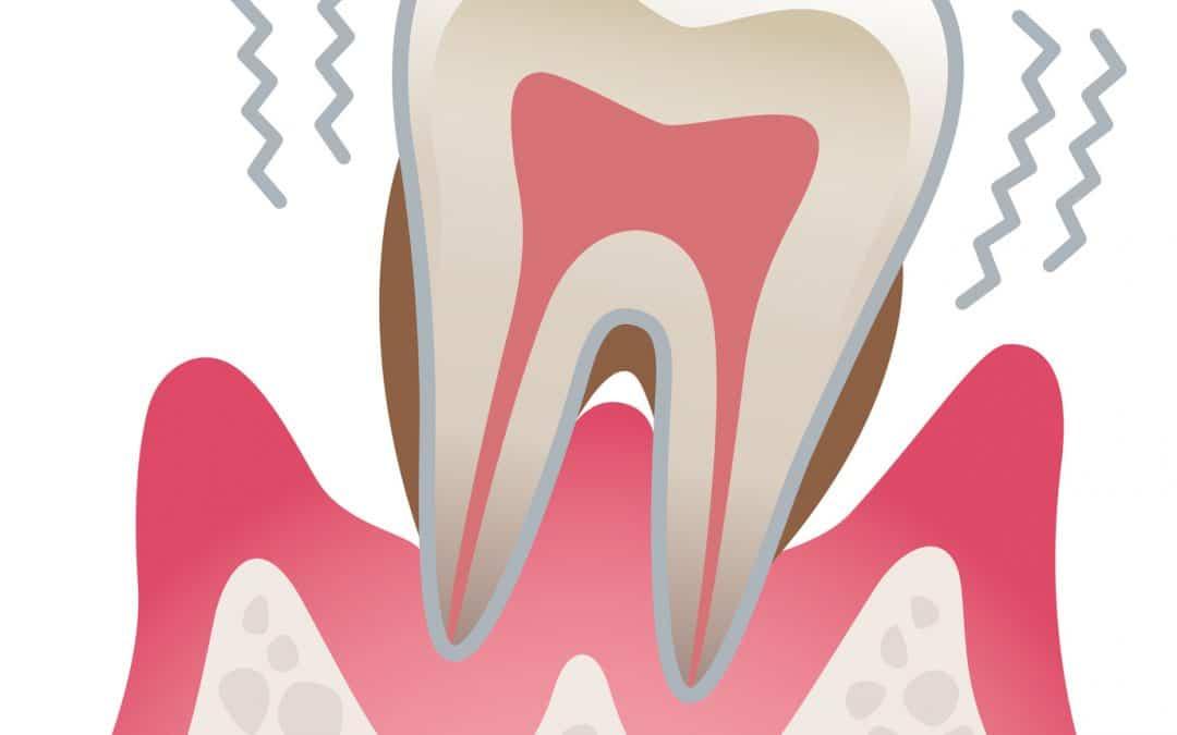 Was hat Dein Darm mit Deinem Zahnfleisch zu tun?