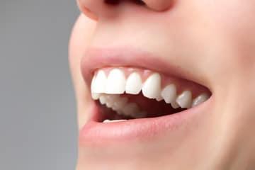 Alles, was Du über Zahnbleaching wissen musst