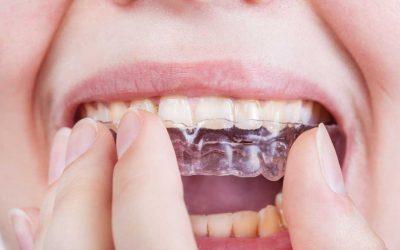 Zahnschiene eingesetzt – und nun?