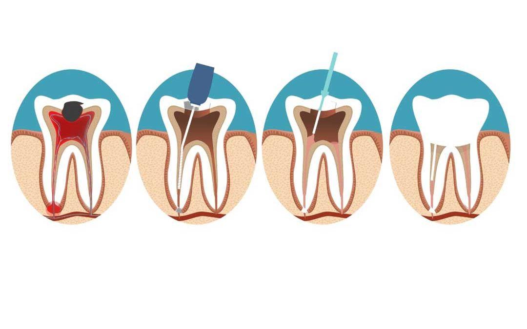 Warum tut ein toter Zahn noch weh?