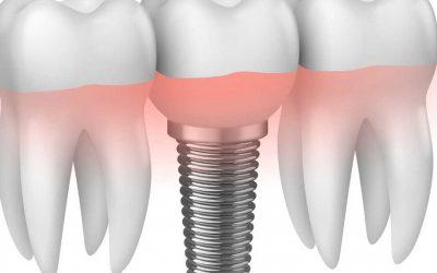 Die 10 häufigsten Fragen zu Zahnimplantaten