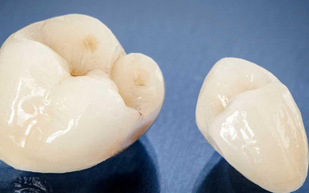 Alles über Zahnkronen